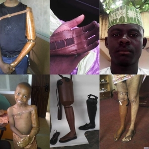 Question!! Is These prosthetics are made in Nigeria [See photos]